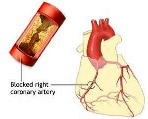 Arterial Cleansing | Atherosclerosis Consequences | Blocked Right Coronary Artery